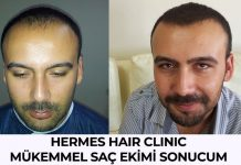 hermes hair clinic saç ekimi sonucu