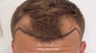 Dr Zekeriya Kul saç ekimi