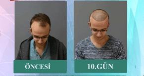 transmed saç ekim merkezi istanbul