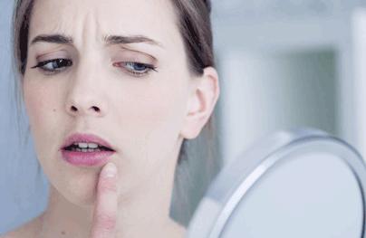 Ağız Kenarında Kırışıklıklar Mı Baş Gösteriyor?