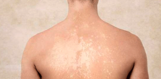 tinea versicolor bitkisel tedavisi