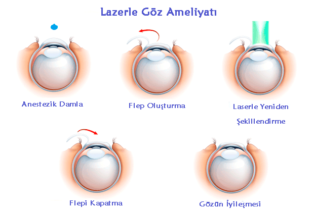 Lazerle Göz Ameliyatı Nedir?